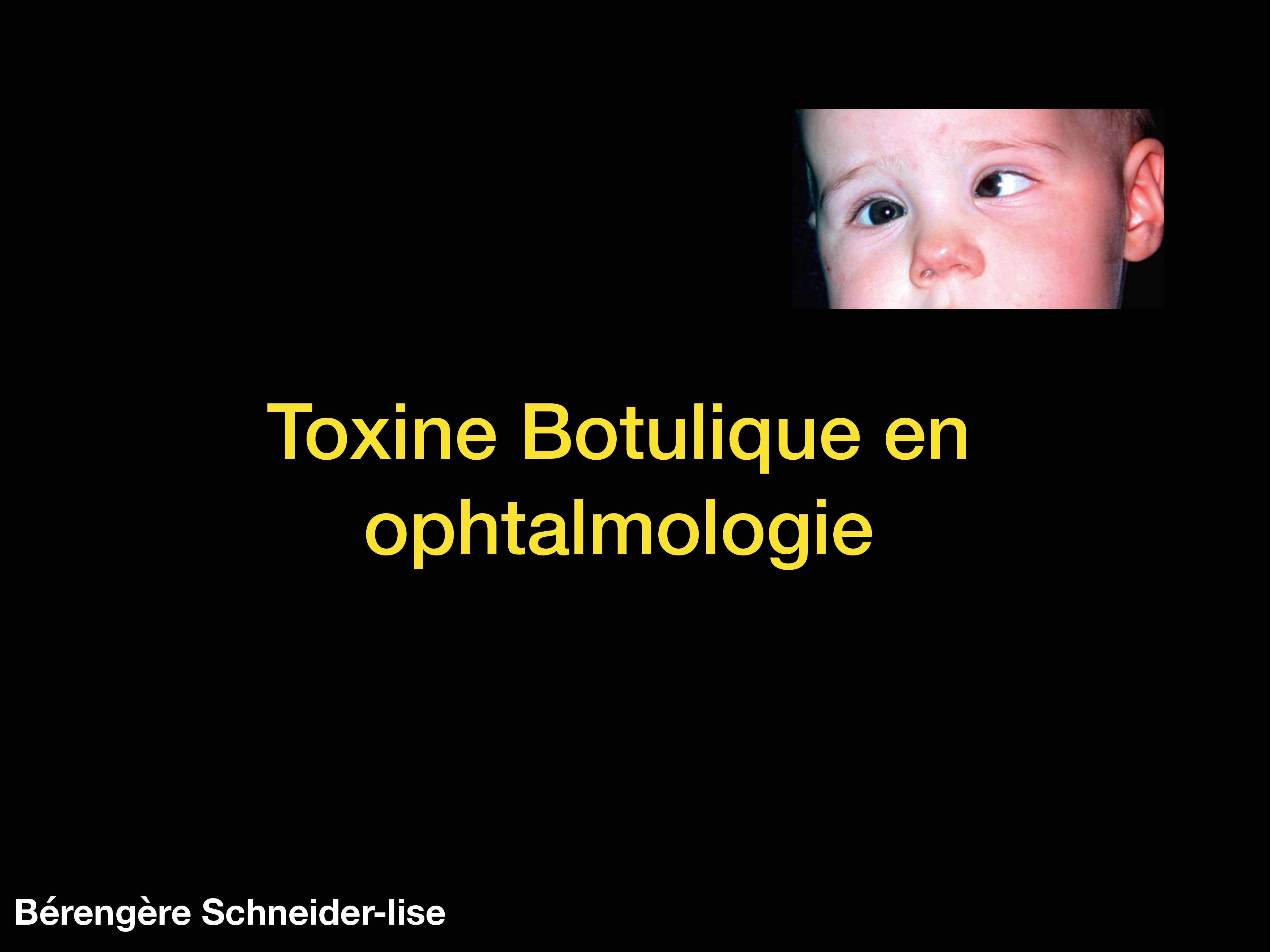 toxine botulique ophtalmologie